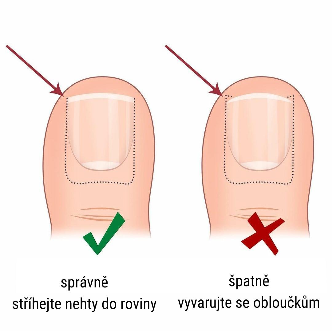 'Správné stříhání nehtů na nohou